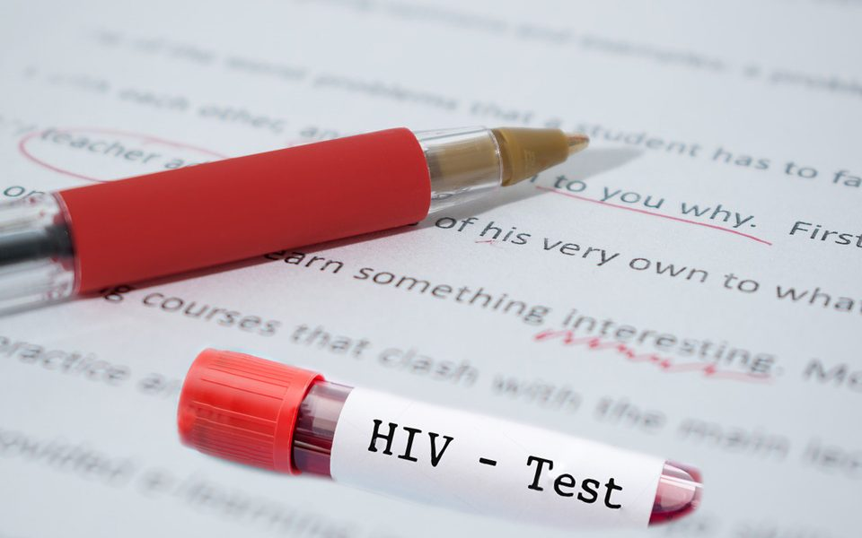 teste-hiv_concurso-3